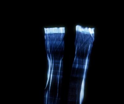 Blue stockings 1